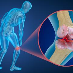 Pilates, um aliado contra a osteoporose